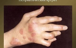 Дают ли инвалидность при псориатическом артрите