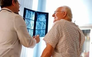 Спондилоартроз грудного отдела позвоночника как лечить