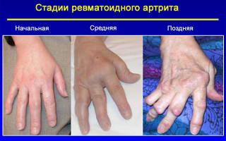 Плавник моржа при ревматоидном артрите