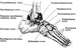 Асептический некроз таранной кости голеностопного сустава
