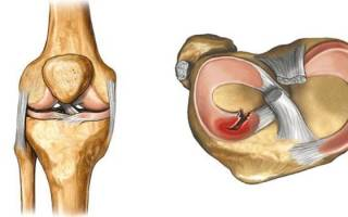 Что такое разрыв мениска коленного сустава