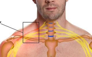 Неврит плечевого нерва симптомы и лечение