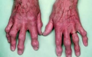 Деформирующий артроз кистей рук лечение народными средствами
