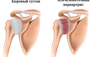 Лечебная физкультура при плечевом периартрите