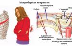 Невралгия симптомы и лечение в домашних условиях