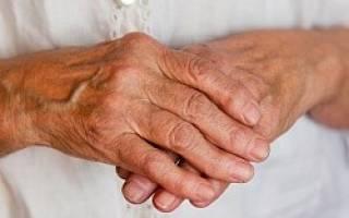 Лечение ревматоидного артрита у пожилых