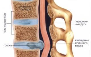 Лфк при грыже грудного отдела позвоночника