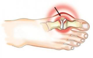 Уколы при артрите пальцев ног