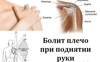 При поднятии руки вверх сильная боль в плечевом суставе