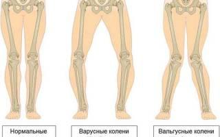 Вальгусная деформация коленных суставов у детей
