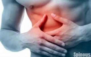 Как лечить межреберную невралгию грудной клетки в домашних условиях