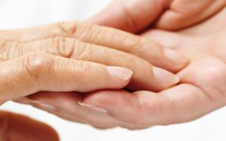 Лечение ревматоидного артрита стволовыми клетками