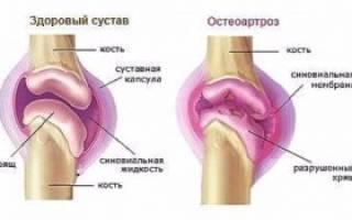 Может ли быть температура при деформирующем остеоартрозе
