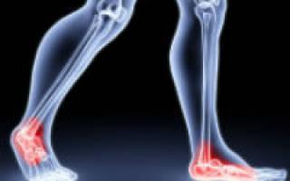 Боль в суставах ног причины и лечение
