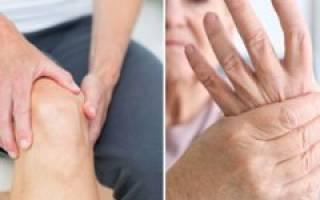 Ревматоидный артрит положена ли инвалидность