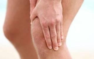 Чем лечить колено при артрозе