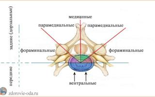 Грыжа позвоночника поясничного отдела симптомы у женщин фото