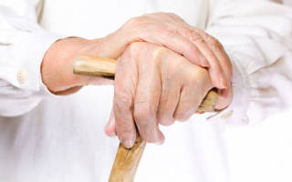 Артроз кисти рук что это такое