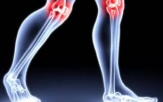 Доа коленных суставов код мкб