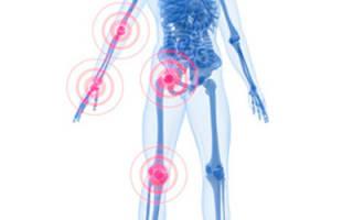 Как лечить боли в суставах