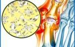 Как вылечить подагрический артрит на ноге