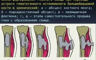 Можно ли вылечить остеомиелит полностью
