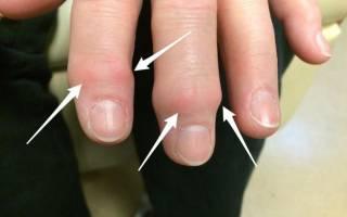Остеоартрит кистей рук лечение народными средствами наружно