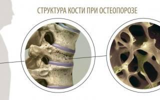 Сенильный остеопороз что это такое