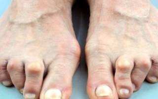 Воспаление суставов пальцев ног лечение