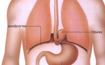 Симптомы грыжи пищеводного отверстия диафрагмы и лечение