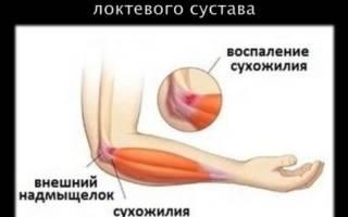 Воспаление надкостницы локтевого сустава лечение