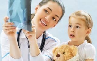 Ревматоидный артрит причины и лечение