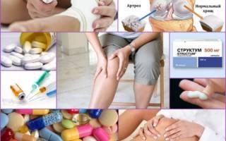 Медикаментозное лечение артритов и артрозов