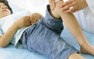 Артрит коленного сустава симптомы и лечение у ребенка