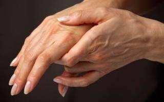 Артрит рук лечение в домашних условиях