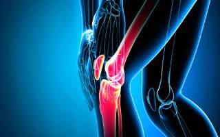 Хруст и боль в коленном суставе