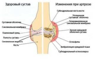 Гонартроз колена какой врач лечит