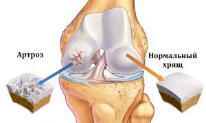 К какому врачу обращаться при артрозе коленного сустава