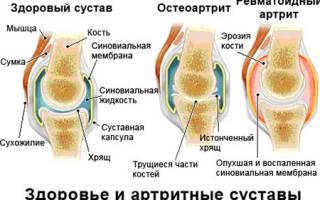 Ревматизм коленного сустава симптомы и лечение