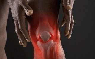 Клинические рекомендации по реактивному артриту