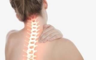 Лечение при остеохондрозе шейного отдела