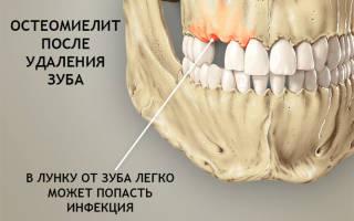 Остеомиелит челюсти симптомы и лечение
