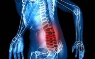 Грыжа позвоночника поясничного отдела симптомы и лечение упражнения