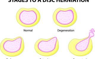 Межпозвоночная грыжа поясничного отдела симптомы и лечение уколы