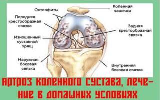 Народные средства лечения артроза колена