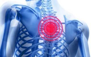Признаки грудного остеохондроза у мужчин