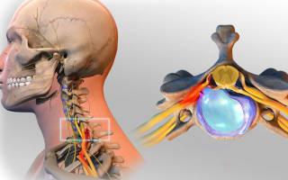 Грыжа шейного отдела позвоночника симптомы и лечение упражнения
