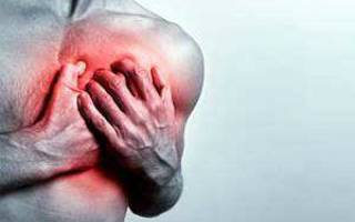 Межреберная невралгия при кашле лечение