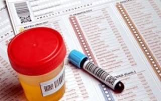 Реактивный артрит какие анализы сдавать