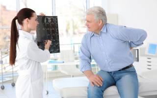 Что такое грудной остеохондроз его причины и симптомы лечение